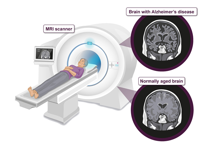 MRI-scanning-illustraton-03_NoLogo