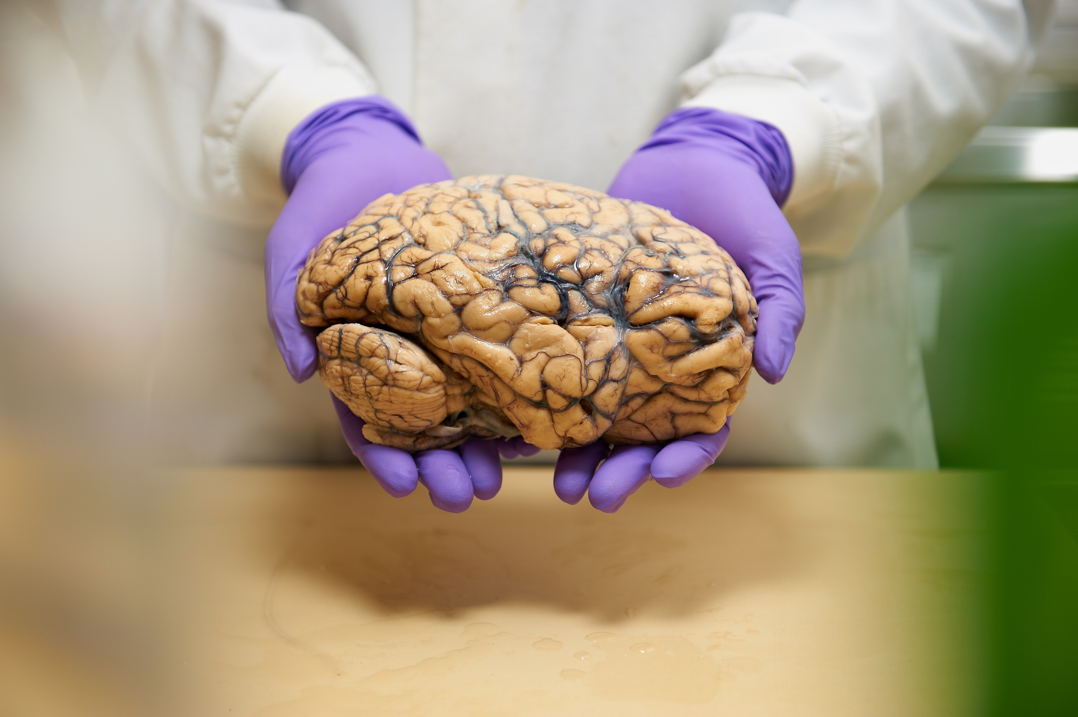Manchester dementia researchers awarded £200,000 funding boost |  Alzheimer's Research UK