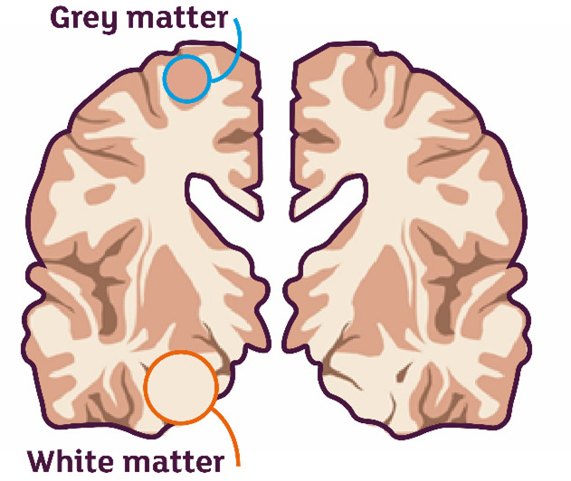 white and grey matter brain diagram