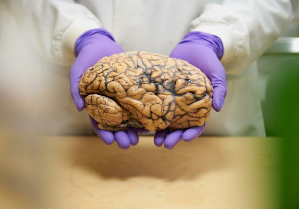Image shot for Alzheimers Research UK direct mail campaign, September 2011...